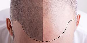 Leczenie łysienia osoczem bogatopłytkowym