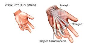Choroba Dupuytrena